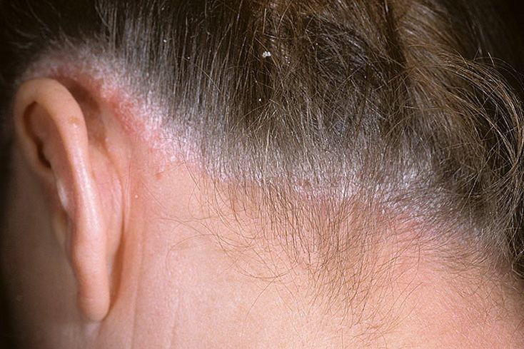 Волосяной псориаз головы