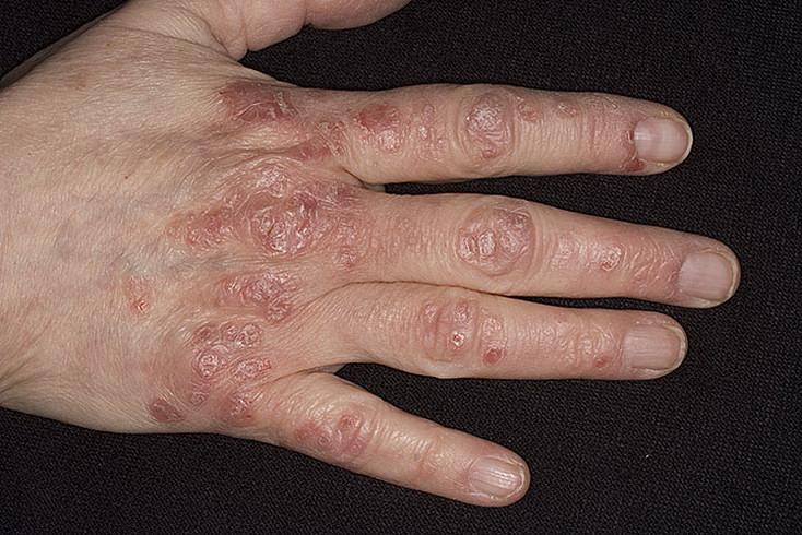 Что за болезнь чернеет кожа 143
