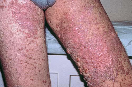 бляшки на ногах
