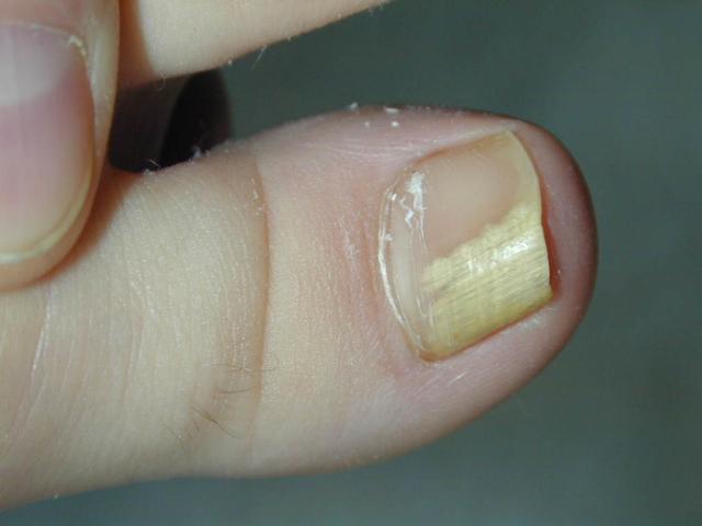 Грибок ногтя на большом пальце: лечение, фото и симптомы