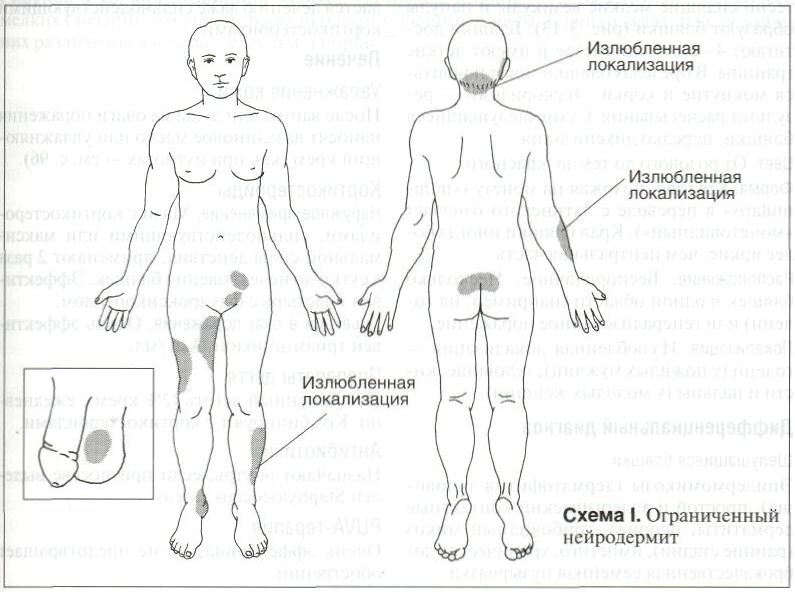 схема расположения нейродермита