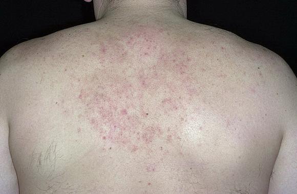 Контактный дерматит на спине у детей фото