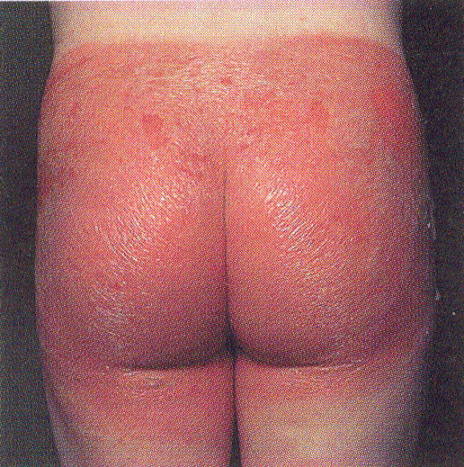 Как проявляется контактный дерматит у детей фото