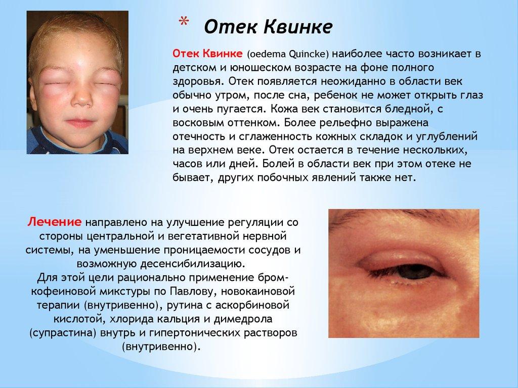 Лечение дерматита распространённой формы