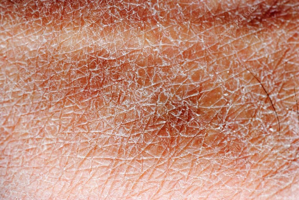Лечение старой кожи