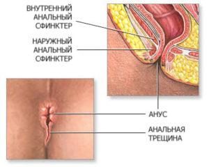 анус и сфинктер