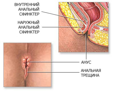 После анального секса трещины как лечить