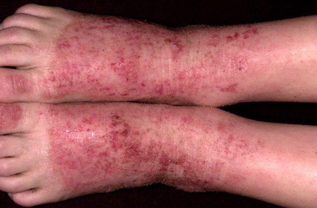 Аллергия у детей в виде красных пятен фото