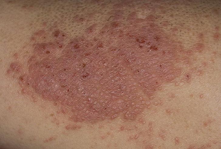 Лечение Псориаза Крапивой