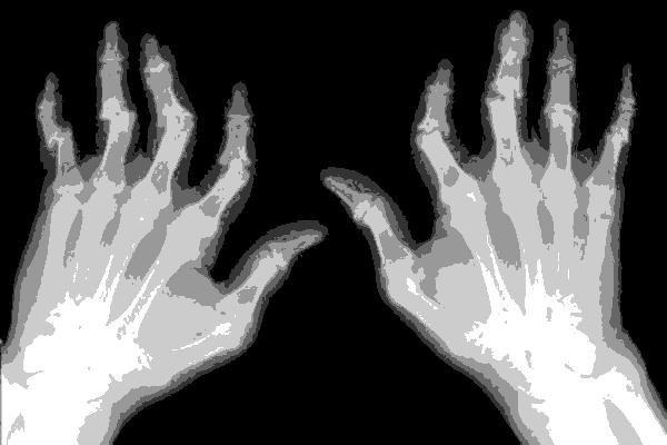 руки на рентгене