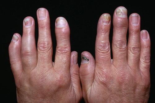 Лечение псориатический артроз -
