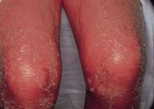 Как лечить обострение псориаза