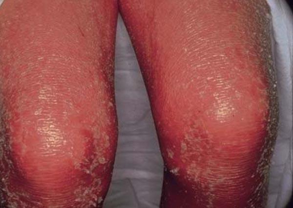 обострение псориаза