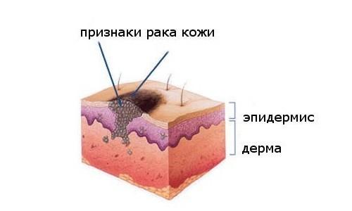 рак кожи признаки