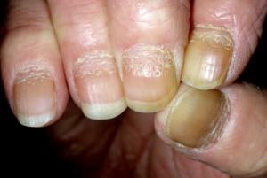 Псориаз на ногтях рук и ног