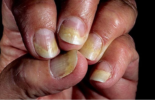 ногти отслаиваются