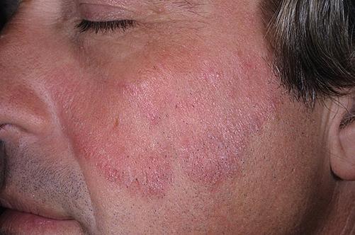 Лечение псориаза цитостатиками