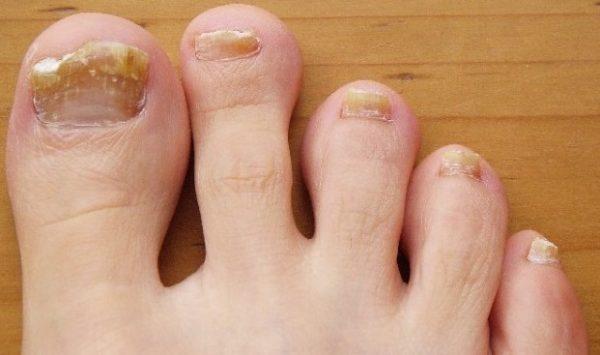 грибок на ногте пальца