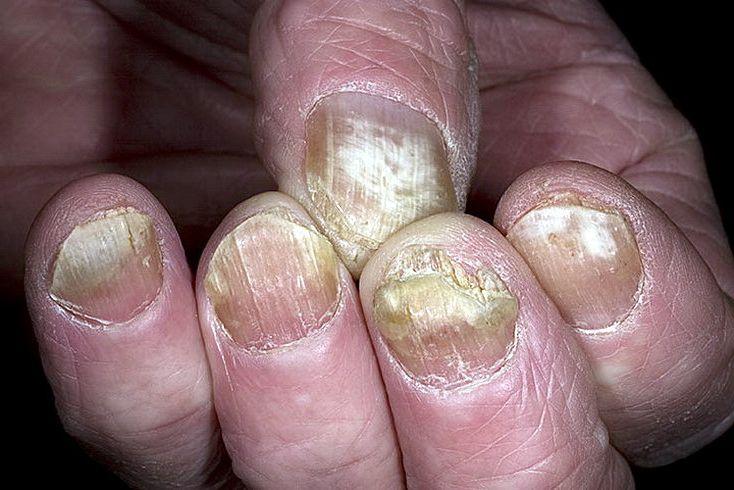 Псориаз и грибок ногтей отличия фото