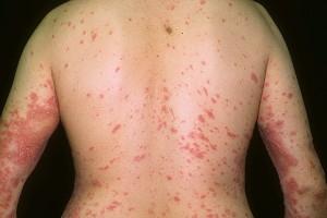 Псориаз на теле и его лечение