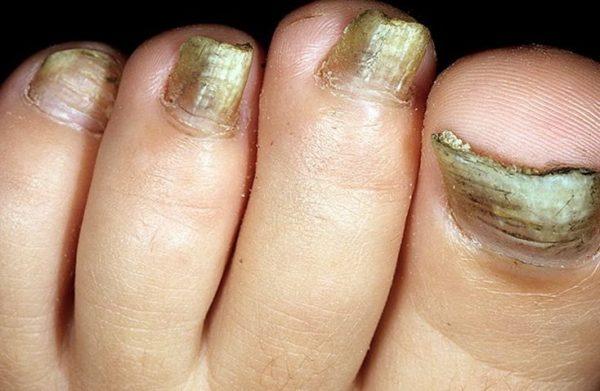 пожелтевшие ногти ног