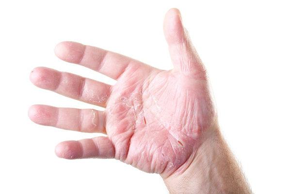 ладонь и пальцы