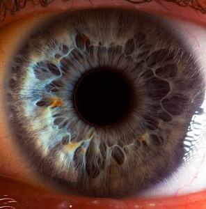 Лечение зрения при псориазе