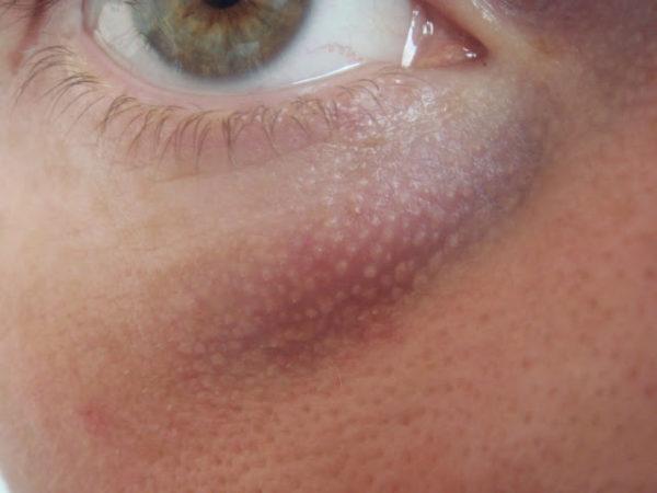 кожа под глазом