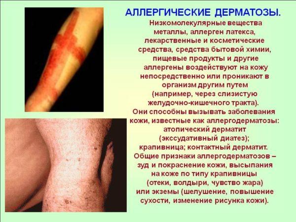 аллергические дерматозы с картинками