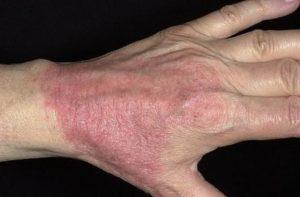 Атопический дерматит на кистях рук