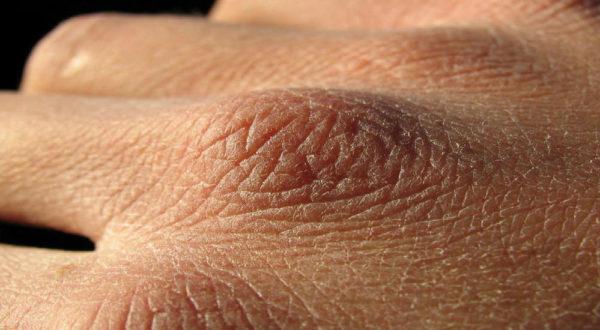 огрубевшая кожа на руках