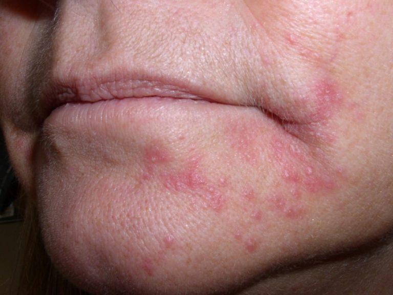 Почему появляется и как лечится стероидный дерматит