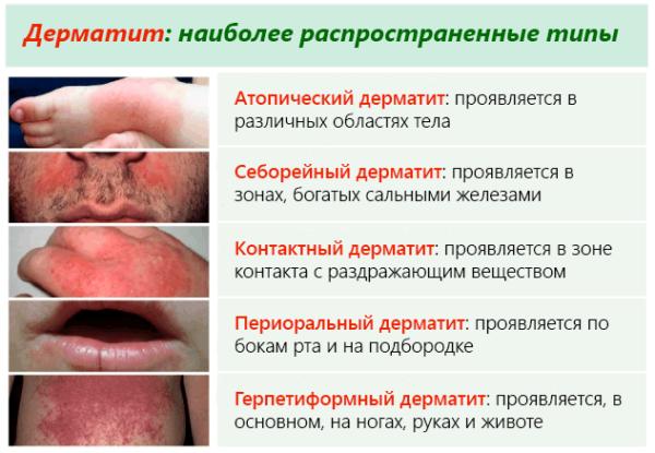 распространённые типы дерматитов
