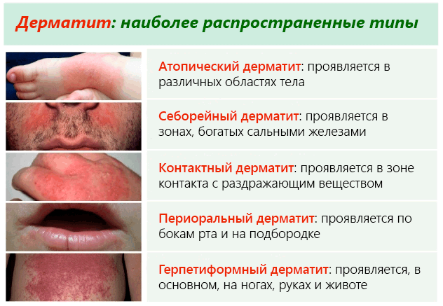 дерматит психосоматика