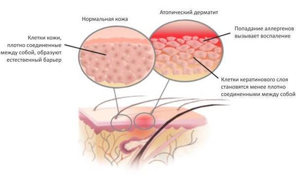 дерматит атопический