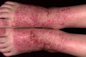 Дерматит на стопах. Лечение заболевания