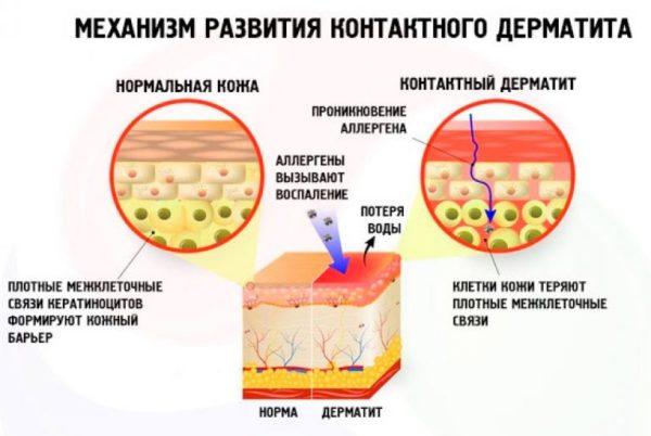 дерматит контактный
