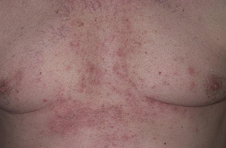 дерматит на мужской груди