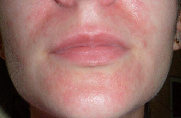 красная кожа около носа и рта