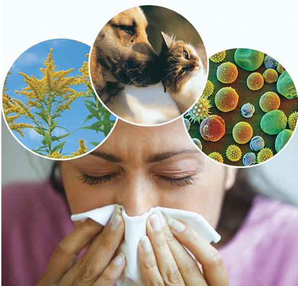 виды аллергии у женщины