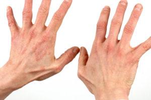 Лечение гормонами при экземе