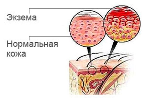 Причины возникновения мокрой экземы