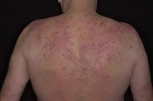 Причины экземы на спине