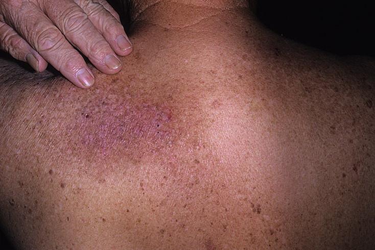 Liečba dermatitídy