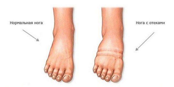 две разных ноги
