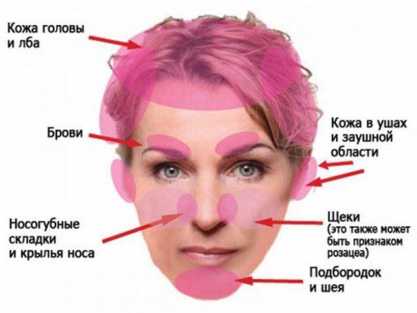 поражения на лице