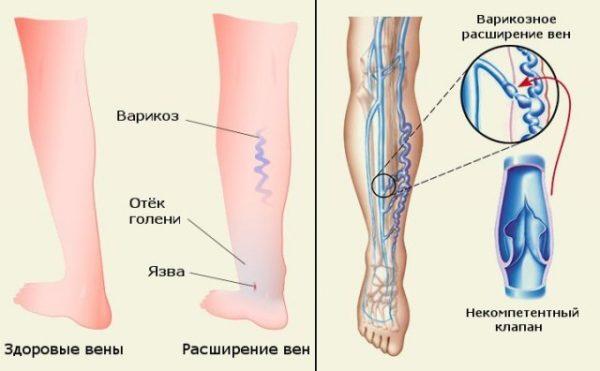 варикоз вен ног
