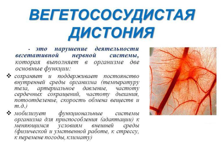 Вегето сосудистая дистония или мигрень