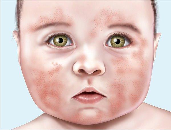 лицо ребёнка с пятнами
