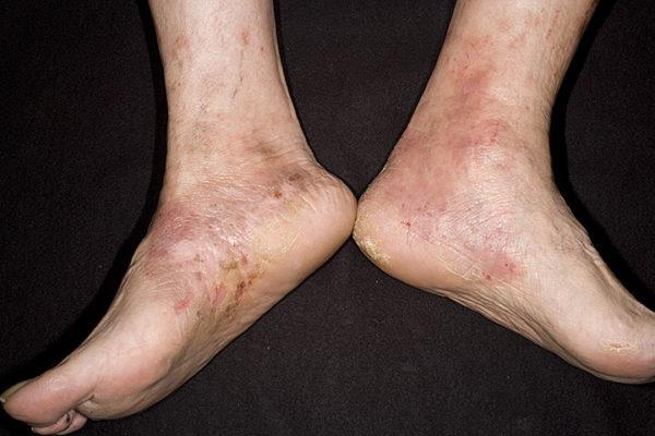 ступни ног с кожными раздражениями